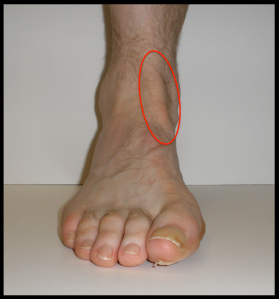 Anterior-Tibial-Tendonitis-Pin-Location-Figure-1